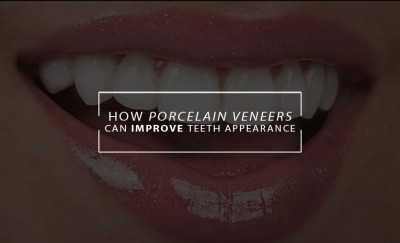 veneers teeth appearance