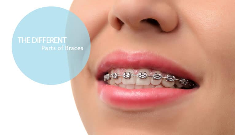 different parts braces