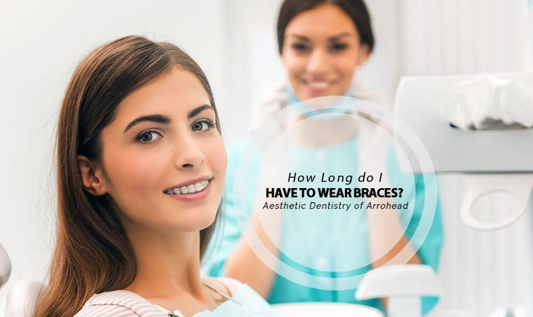 how long wear braces