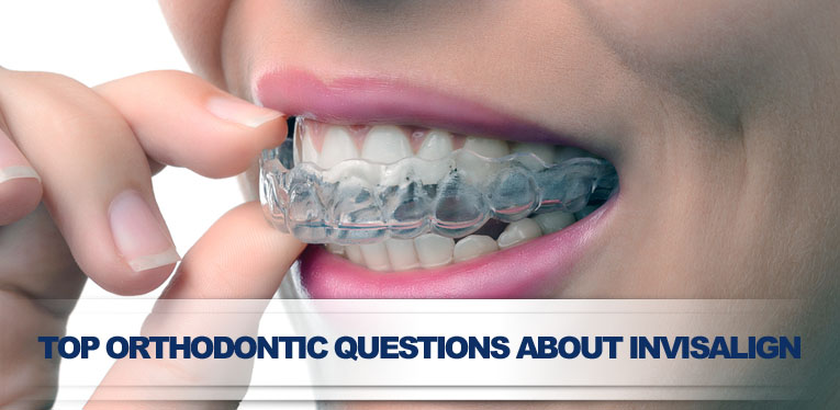 orthodontic questions invisalign