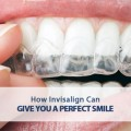 how invisalign can give you a perfect smile
