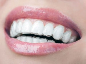 smiling mouth with invisalign on teeth