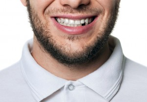 man smiling with missing tooth