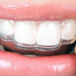 most common questions about retainers