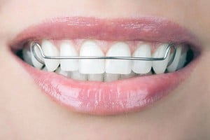 woman smiling with retainer on teeth
