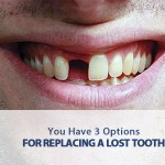 you have 3 options for replacing a lost tooth