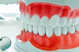 are dentures superior to dental implants