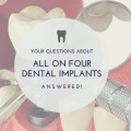 your questions about all on four dental implants answered