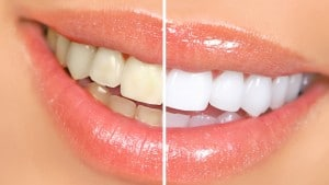 teeth whitening to make you look older