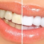 Teeth whitening are a great way to have a nice smile