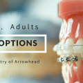 Braces options for kids VS braces for adults