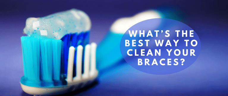 The Best Way to Clean Your Braces