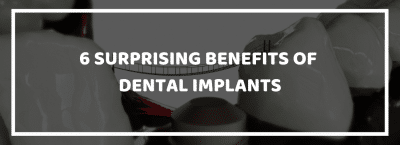 Surprising Benefits of Dental Implants