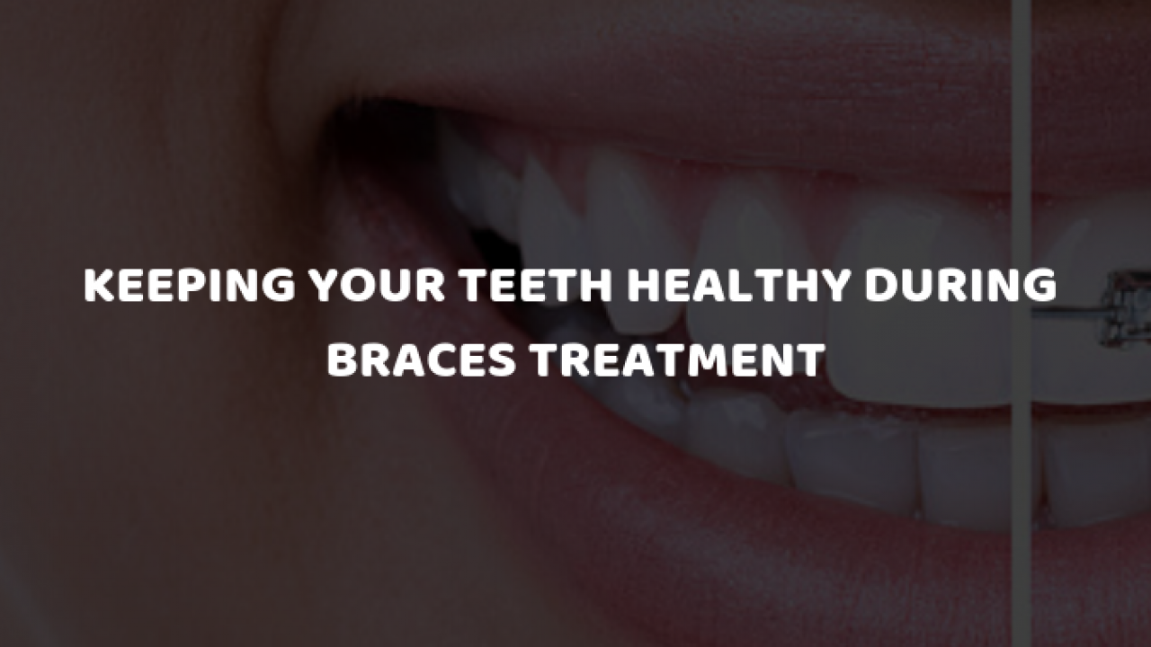 Keeping Your Teeth Healthy during Braces Treatment