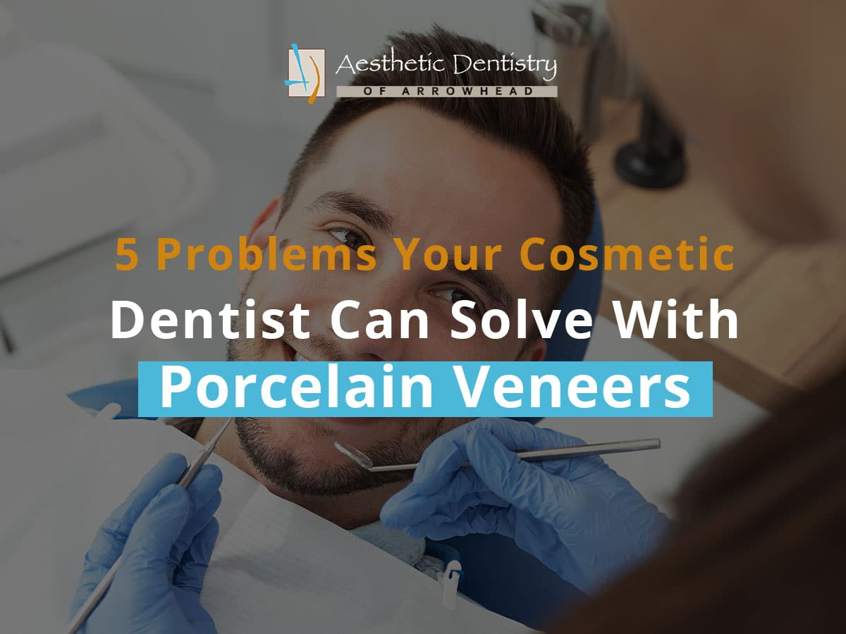 5 Problems Your Cosmetic Dentist Can Solve With Porcelain Veneers