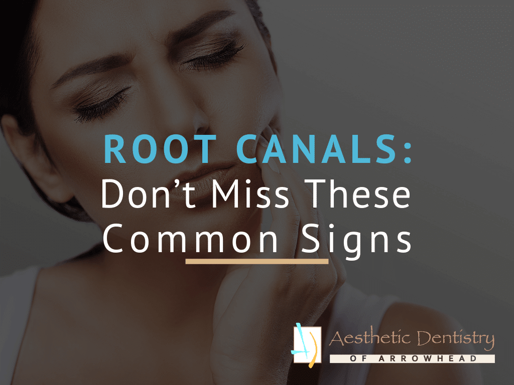 Root Canals: Don't Miss These Common Signs Featured