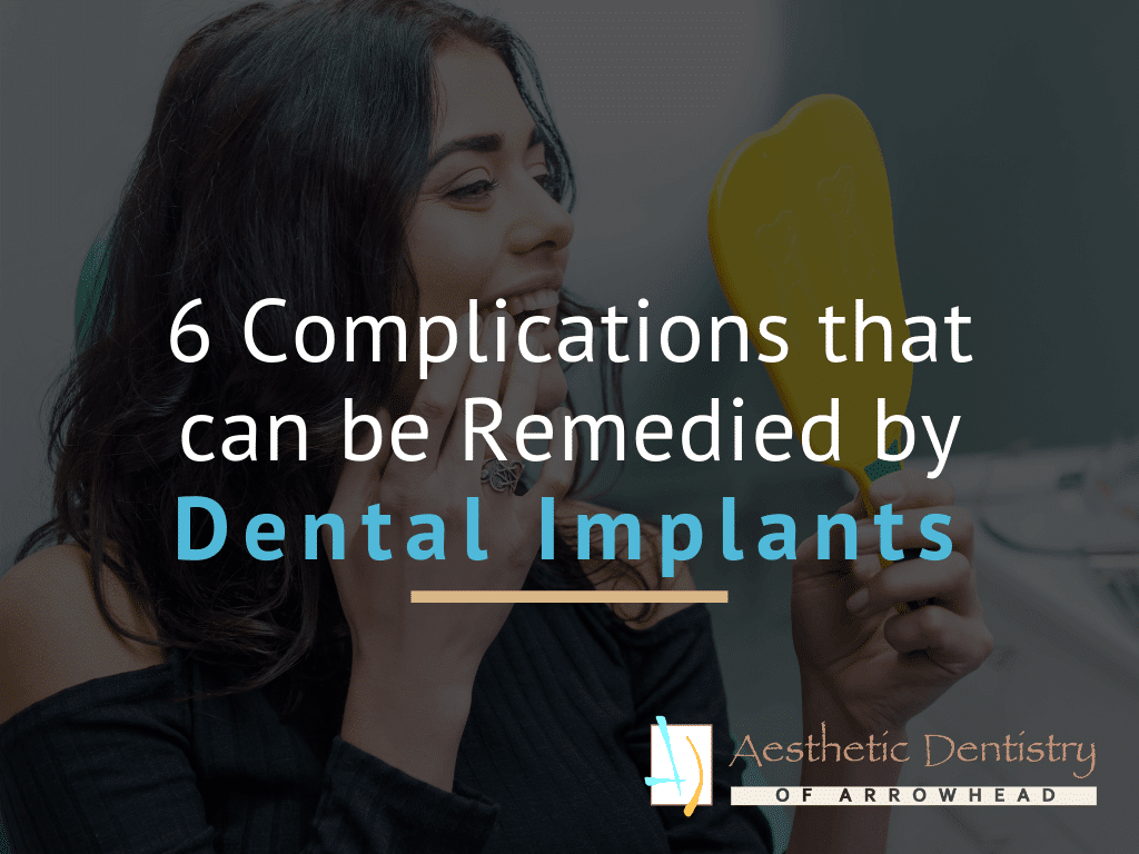 6 Complications that can be Remedied by Dental Implants