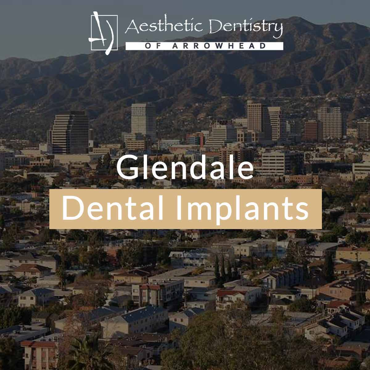 Dental Implants In Glendale - featured image
