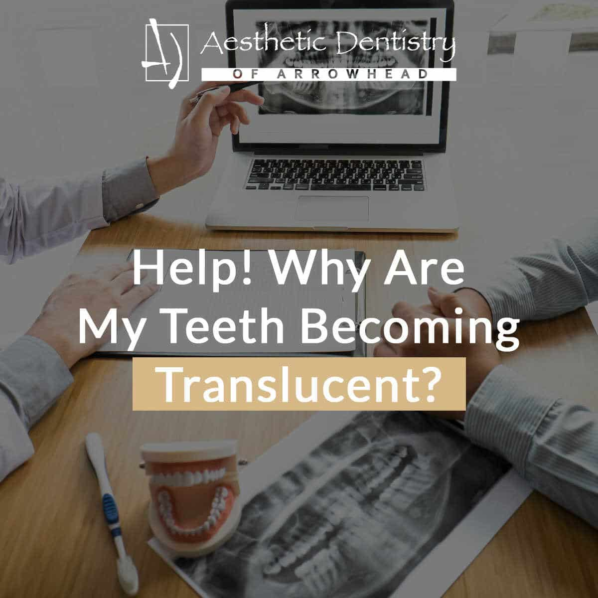 Help! Why Are My Teeth Becoming Translucent?