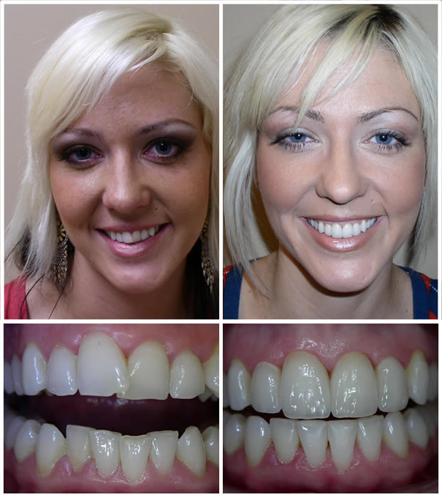 An image from our Peoria AZ dental office smile gallery